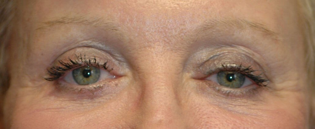 Eyelid Surgery Results After