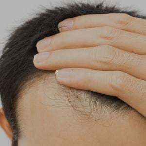 About Hair Loss Image
