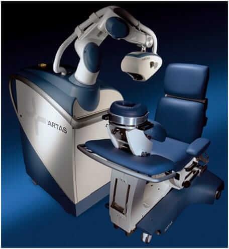 ARTAS Robotic Hair Transplant