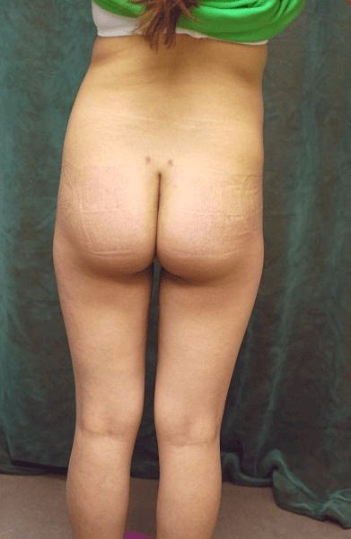 Butt Implants Before and After After