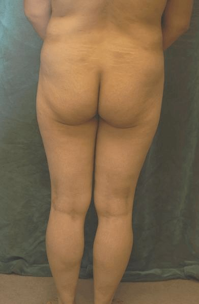 Butt Implant Before & After Before