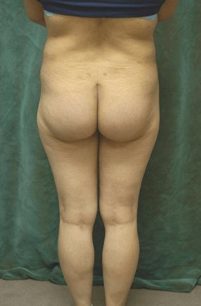 Butt Implant Before & After After Butt Implants