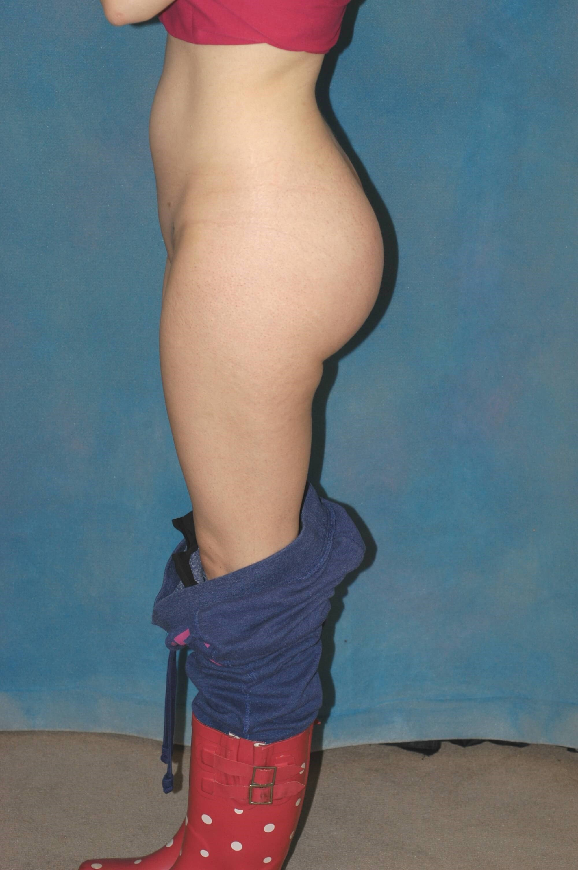 Profile View - Butt Implants After