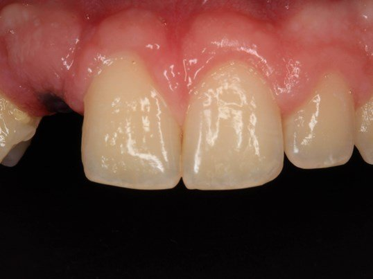 Dental Implant supported Crown Before