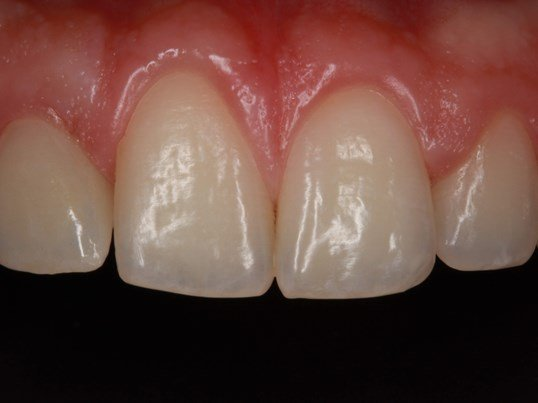 Dental Implant supported Crown After