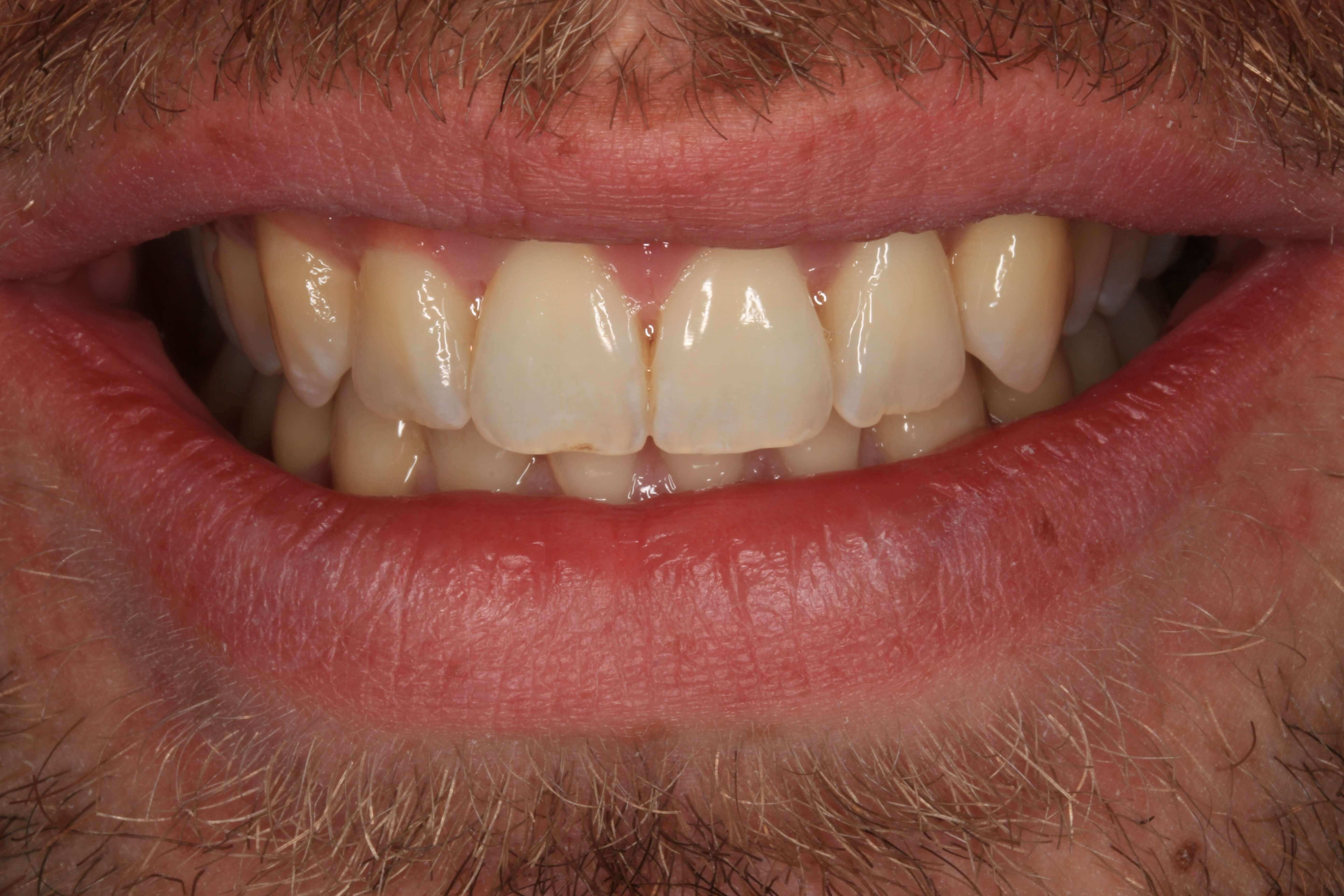 Straightening Crowded Teeth After