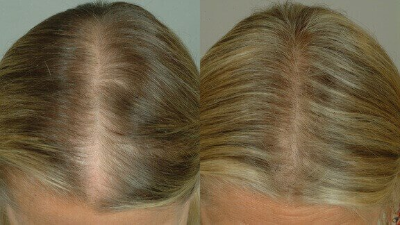 LaserCap Example Before & After Image of White Female's Scalp
