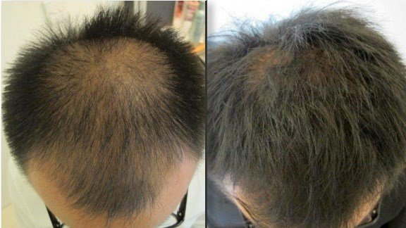 LaserCap Example Before & After Image of Asian Male's Scalp
