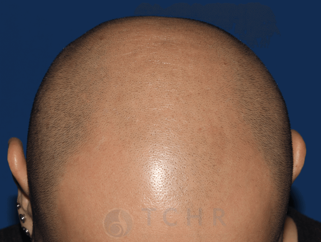 Scalp Micropigmentation Before