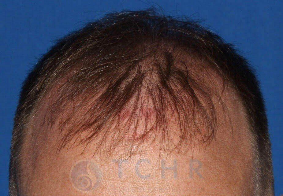 SmartGraft FUE 2,000 Grafts Before