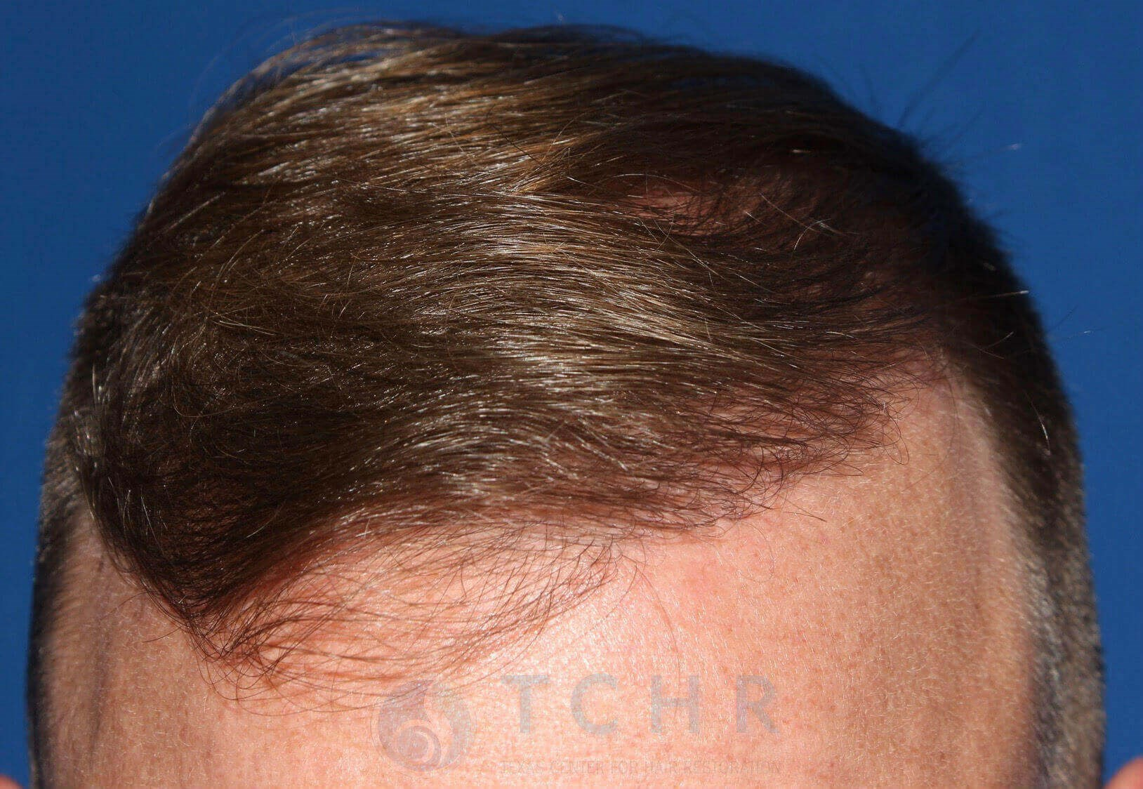 SmartGraft FUE 2,000 Grafts After