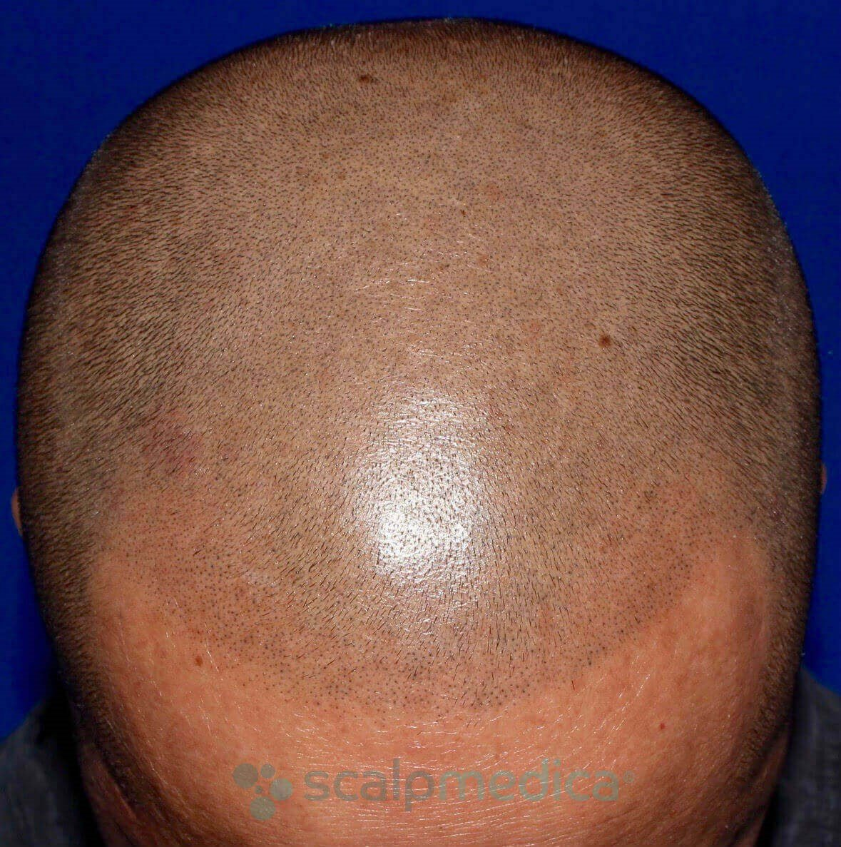 Scalp Micropigmentation After