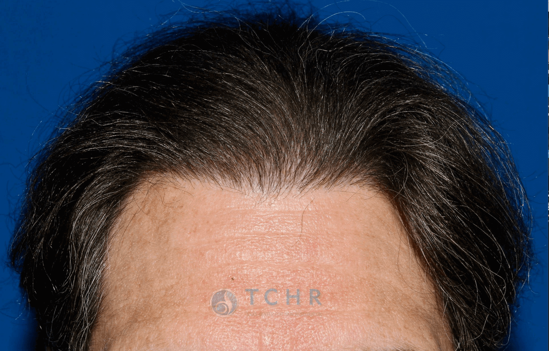 SmartGraft FUE (800 Grafts) After