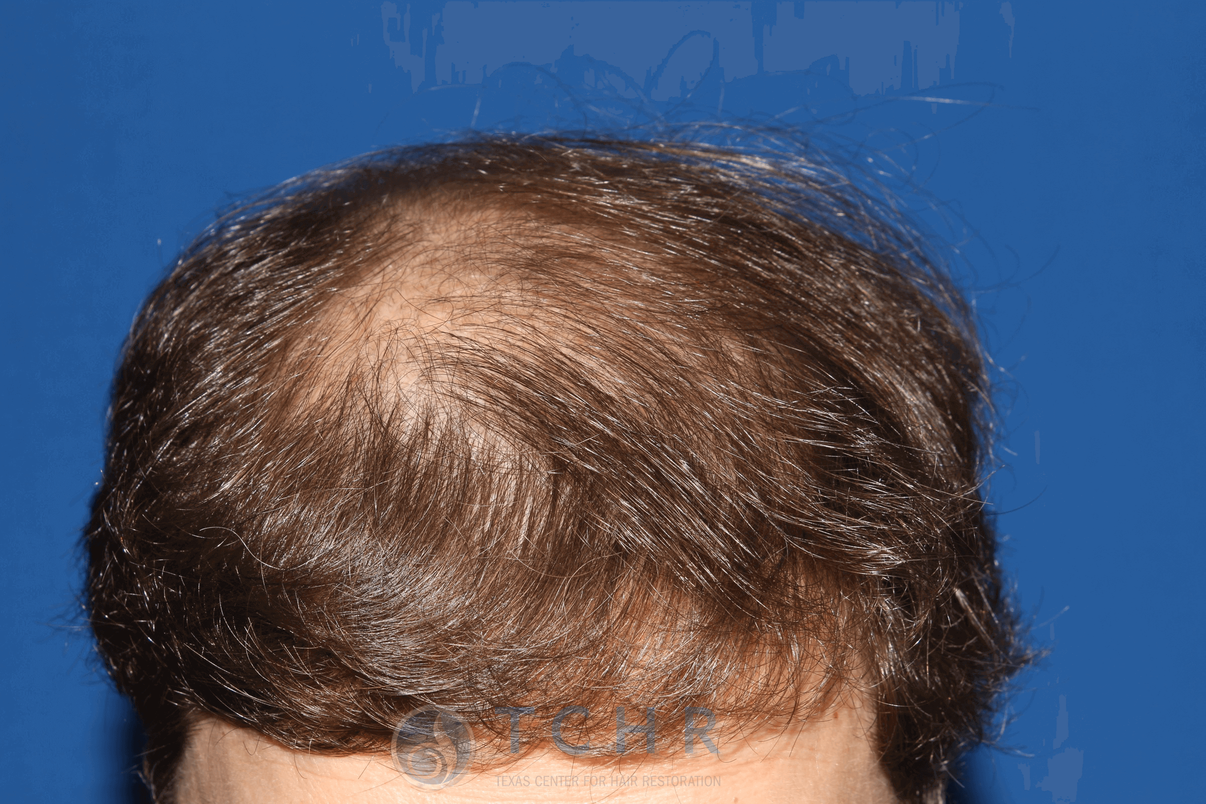 FUT Surgery (2,983 Grafts) Before