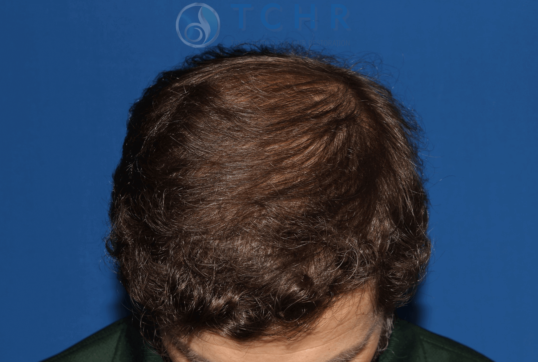 FUT Surgery (2,983 Grafts) After