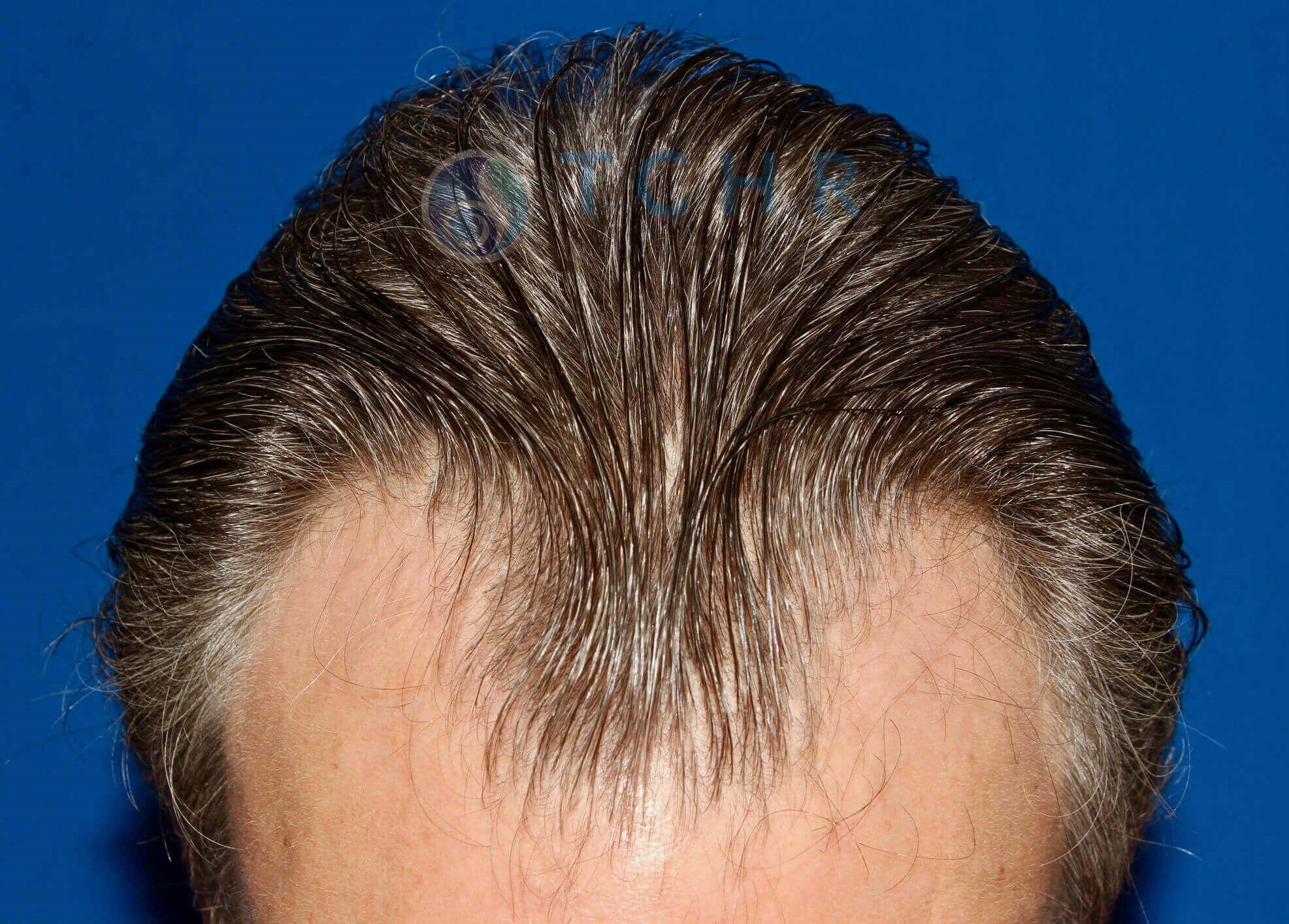 SmartGraft FUE (2,000 Grafts) Before