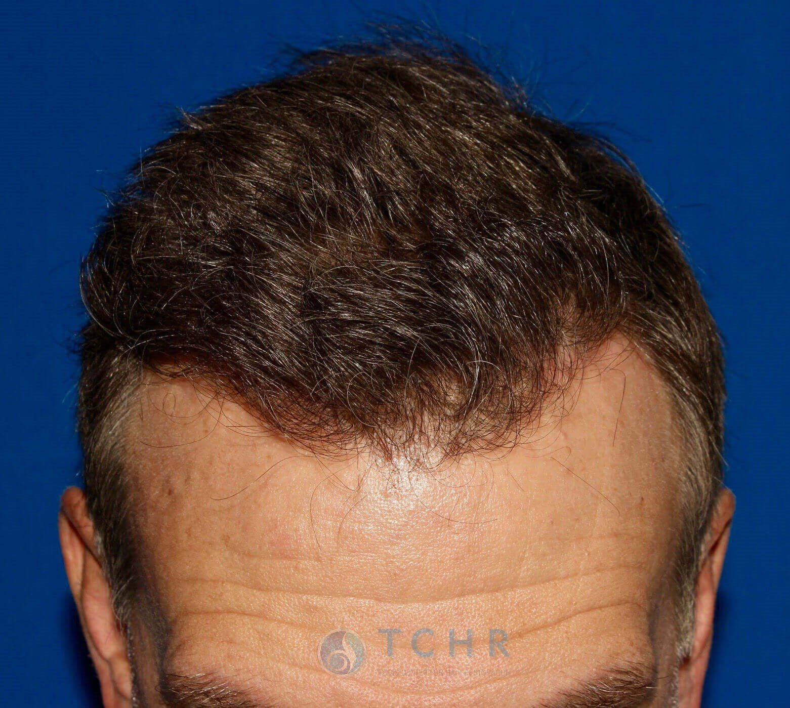 SmartGraft FUE (2,000 Grafts) After
