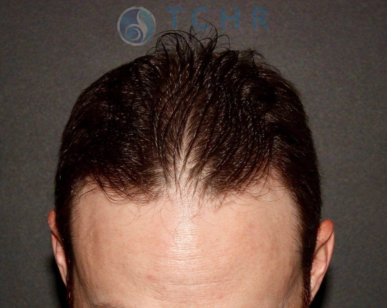 SmartGraft FUE Before