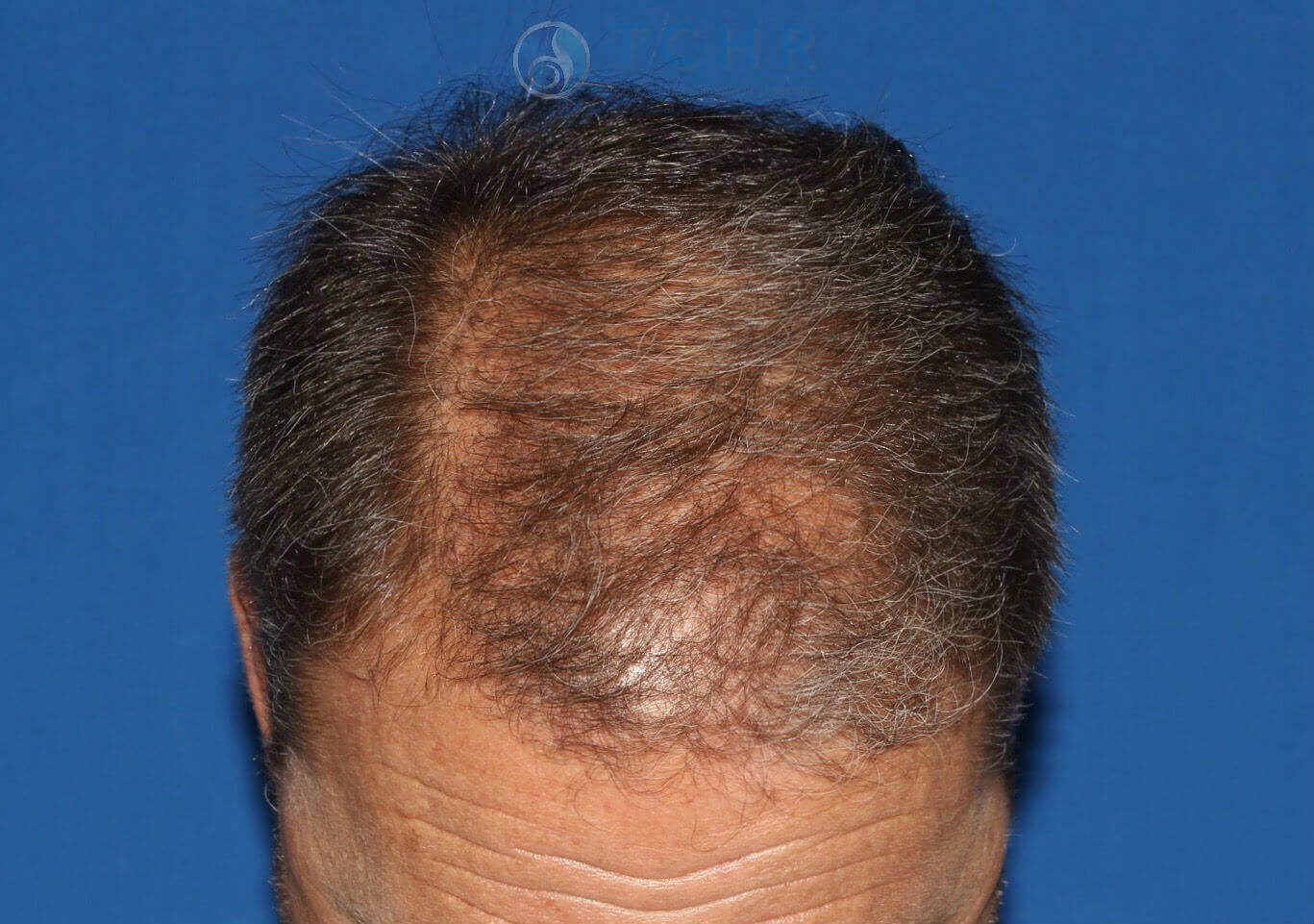 SmartGraft FUE (2,100 Grafts) Before