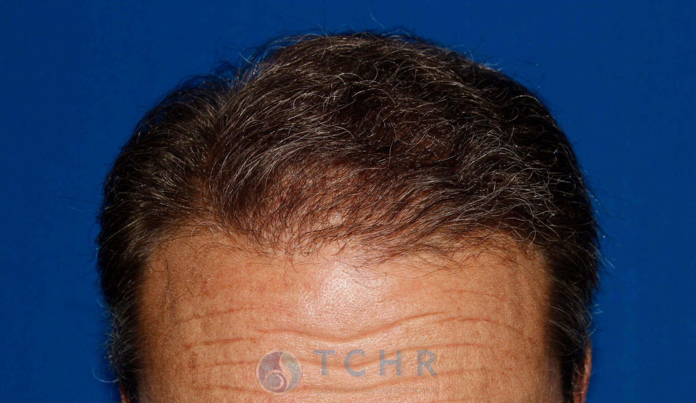 SmartGraft FUE (2,100 Grafts) After
