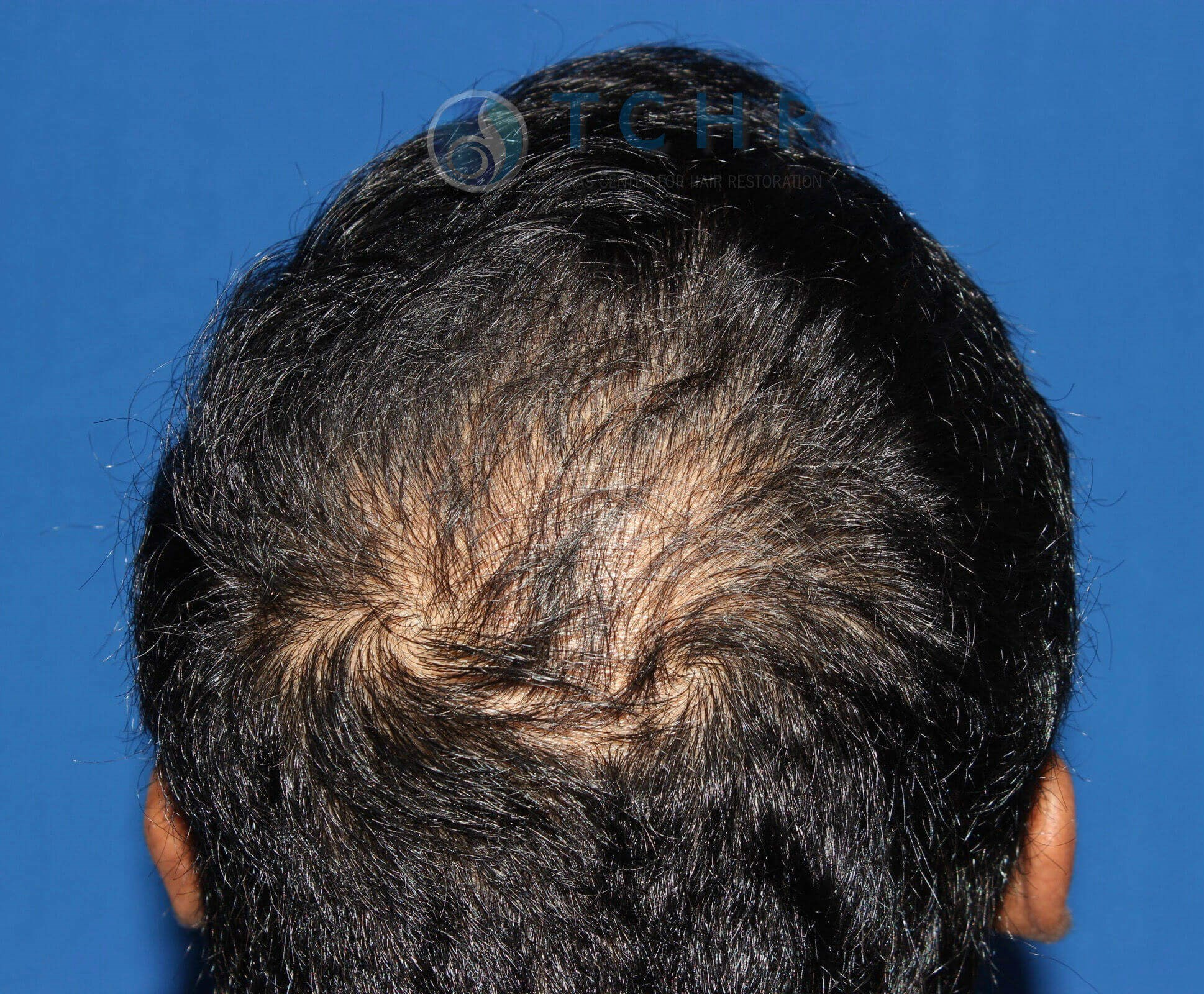 SmartGraft FUE (1,500 Grafts) Before