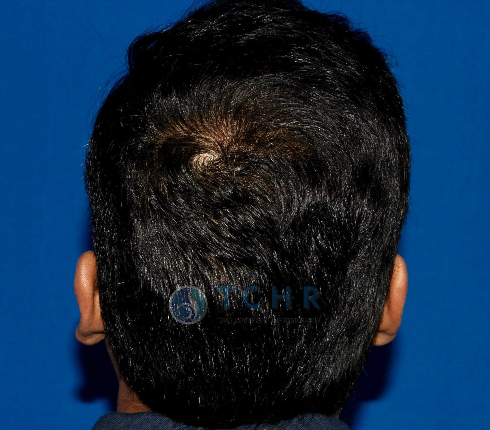 SmartGraft FUE (1,500 Grafts) After
