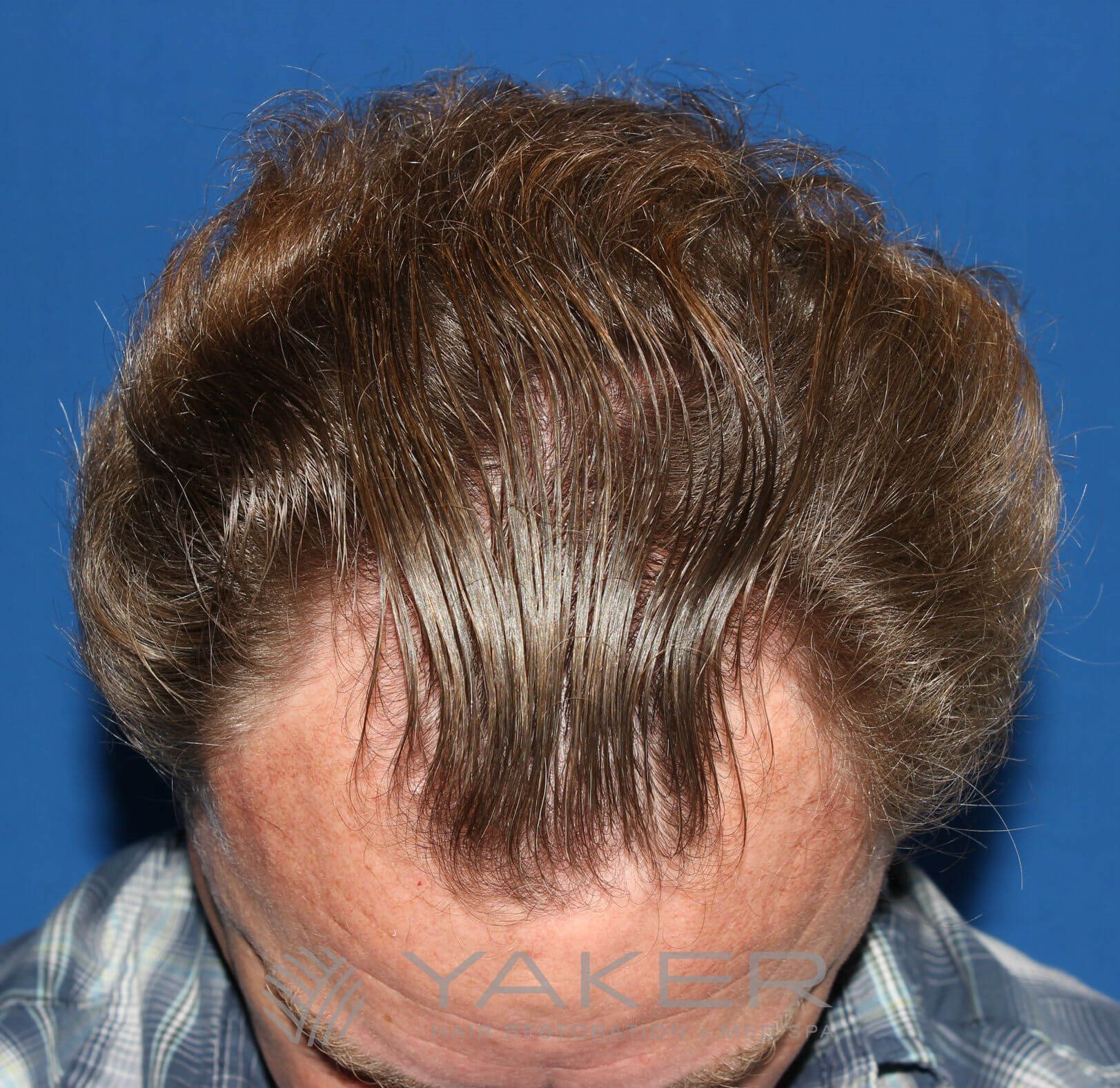 SmartGraft FUE (868 Grafts) Before