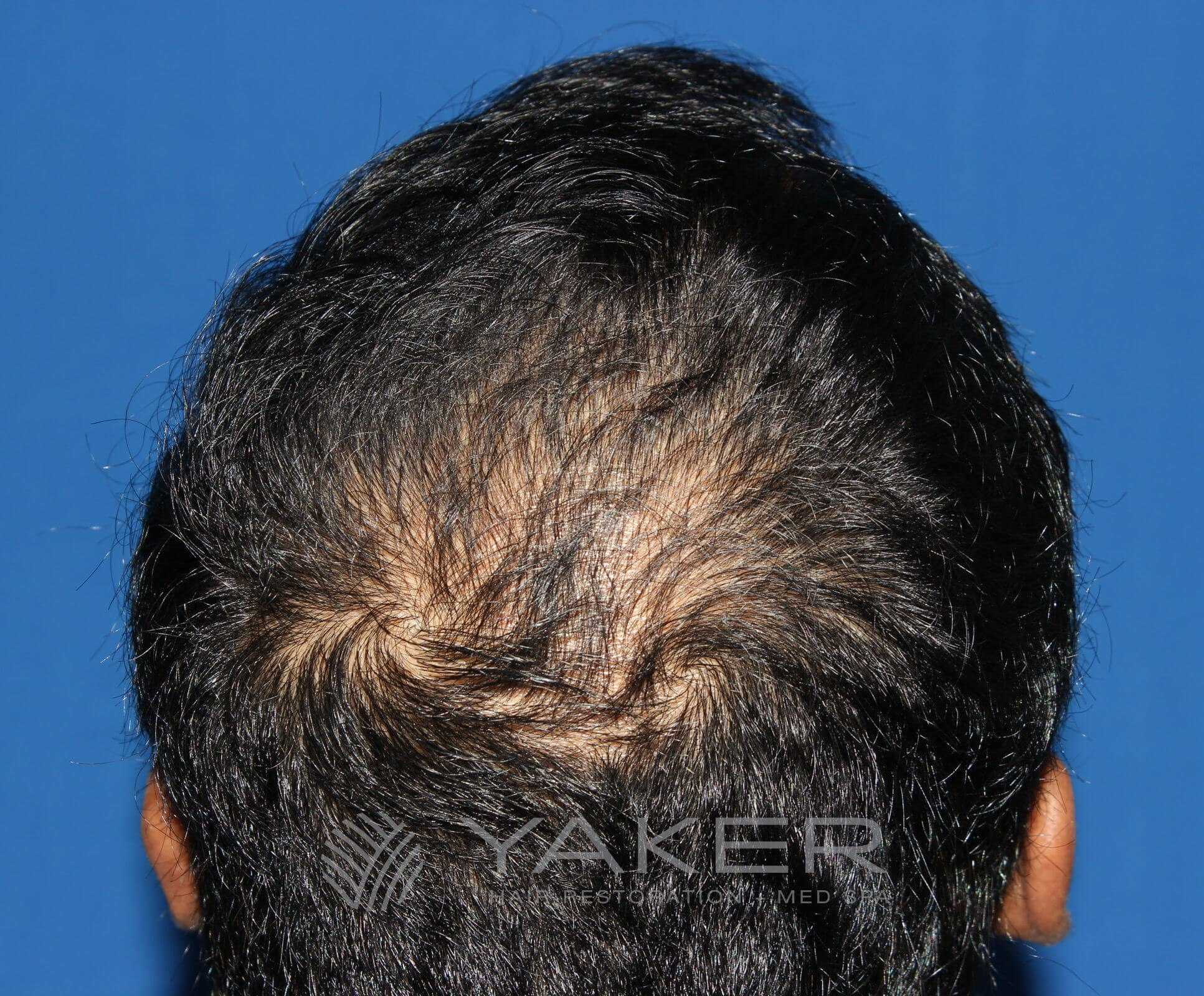 Finasteride Plus Before
