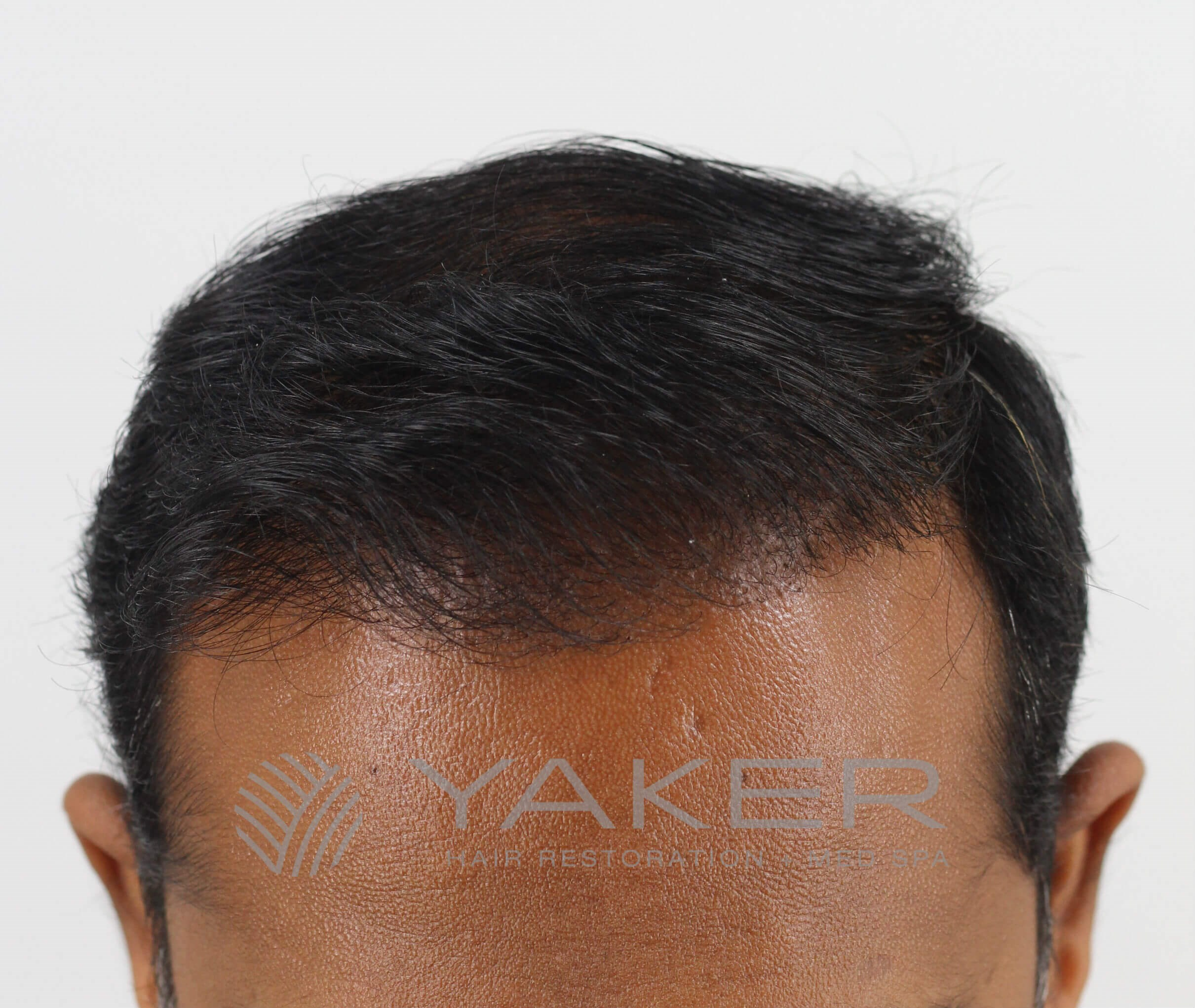 SmartGraft FUE (2,004 Grafts) After