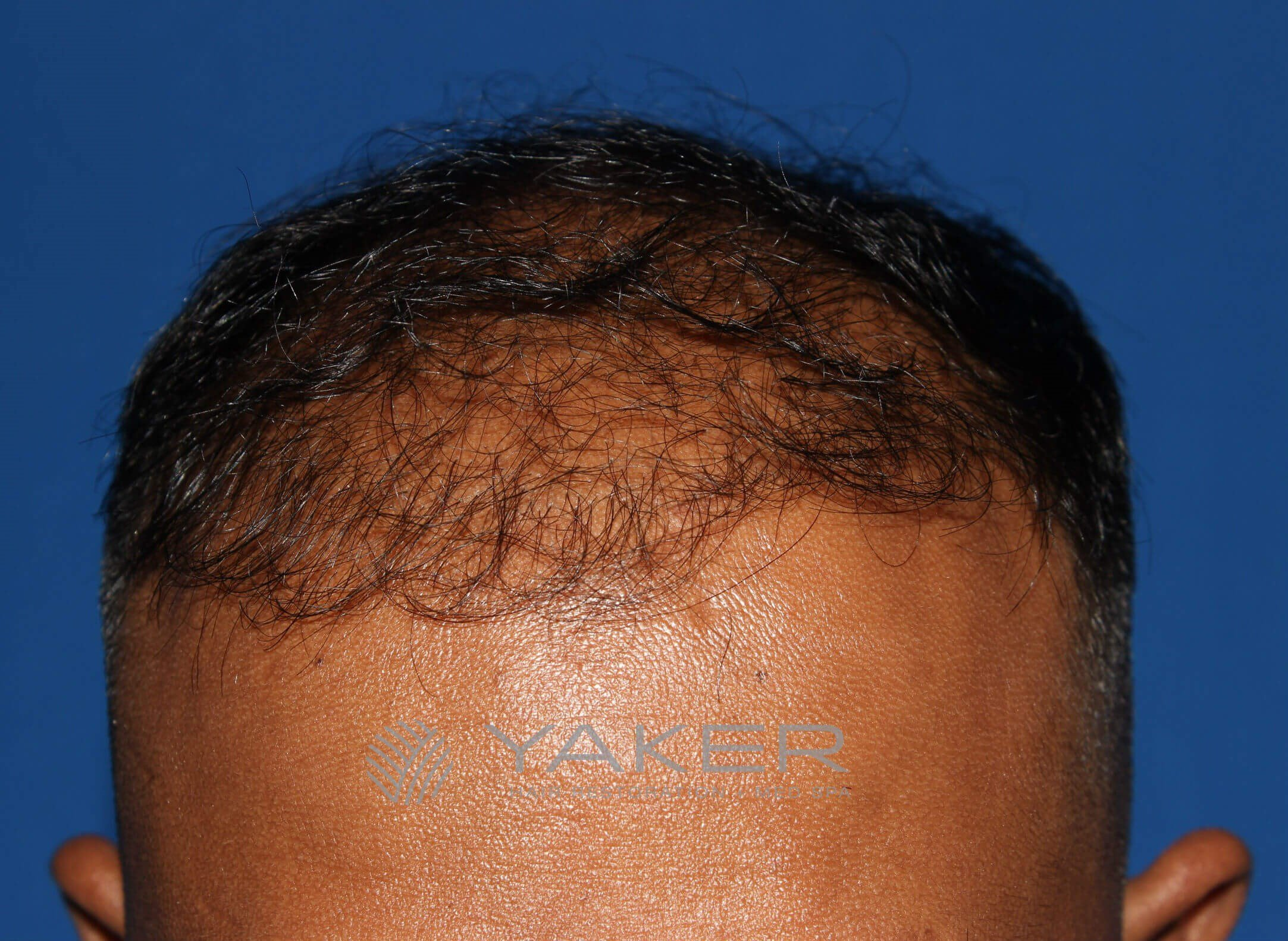 SmartGraft FUE (2,004 Grafts) Before