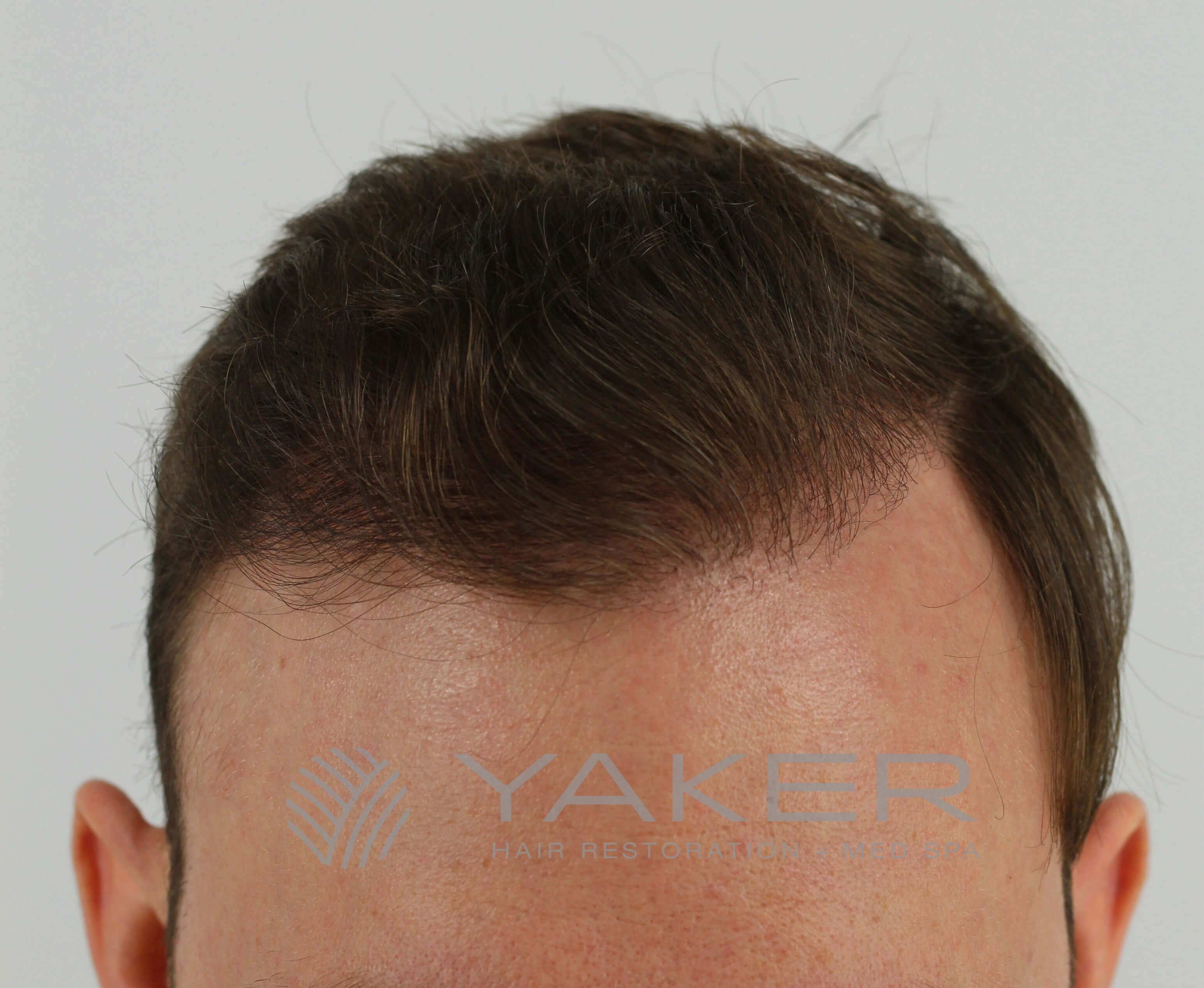 SmartGraft FUE (1,600 Grafts) After
