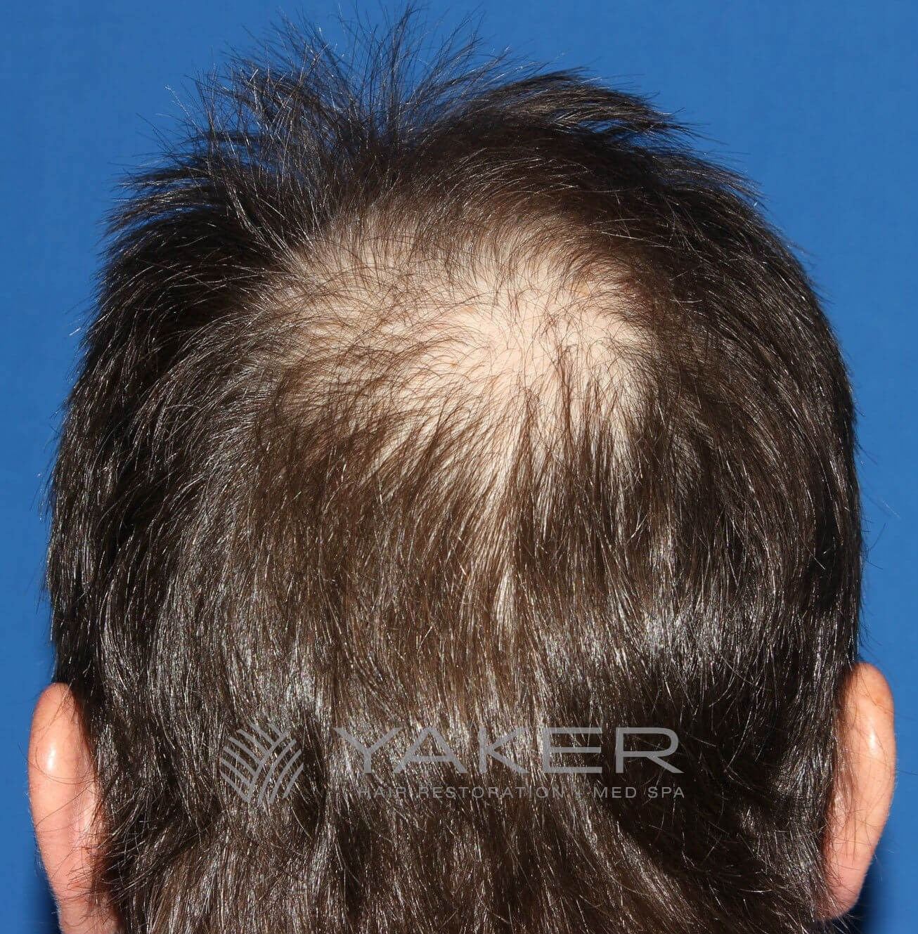 SmartGraft FUE (1,900 Grafts) Before