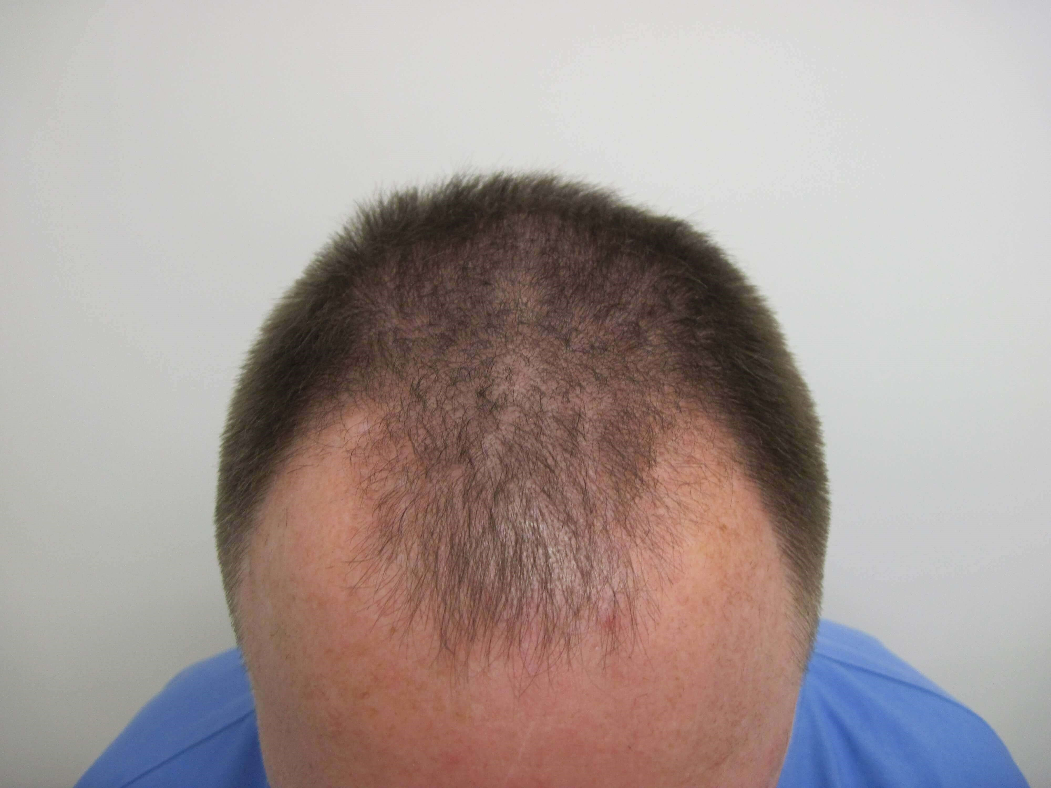 SmartGraft FUE: 2,300 Grafts Before
