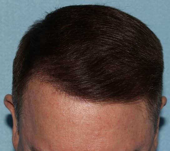 SmartGraft FUE: 2,300 Grafts After