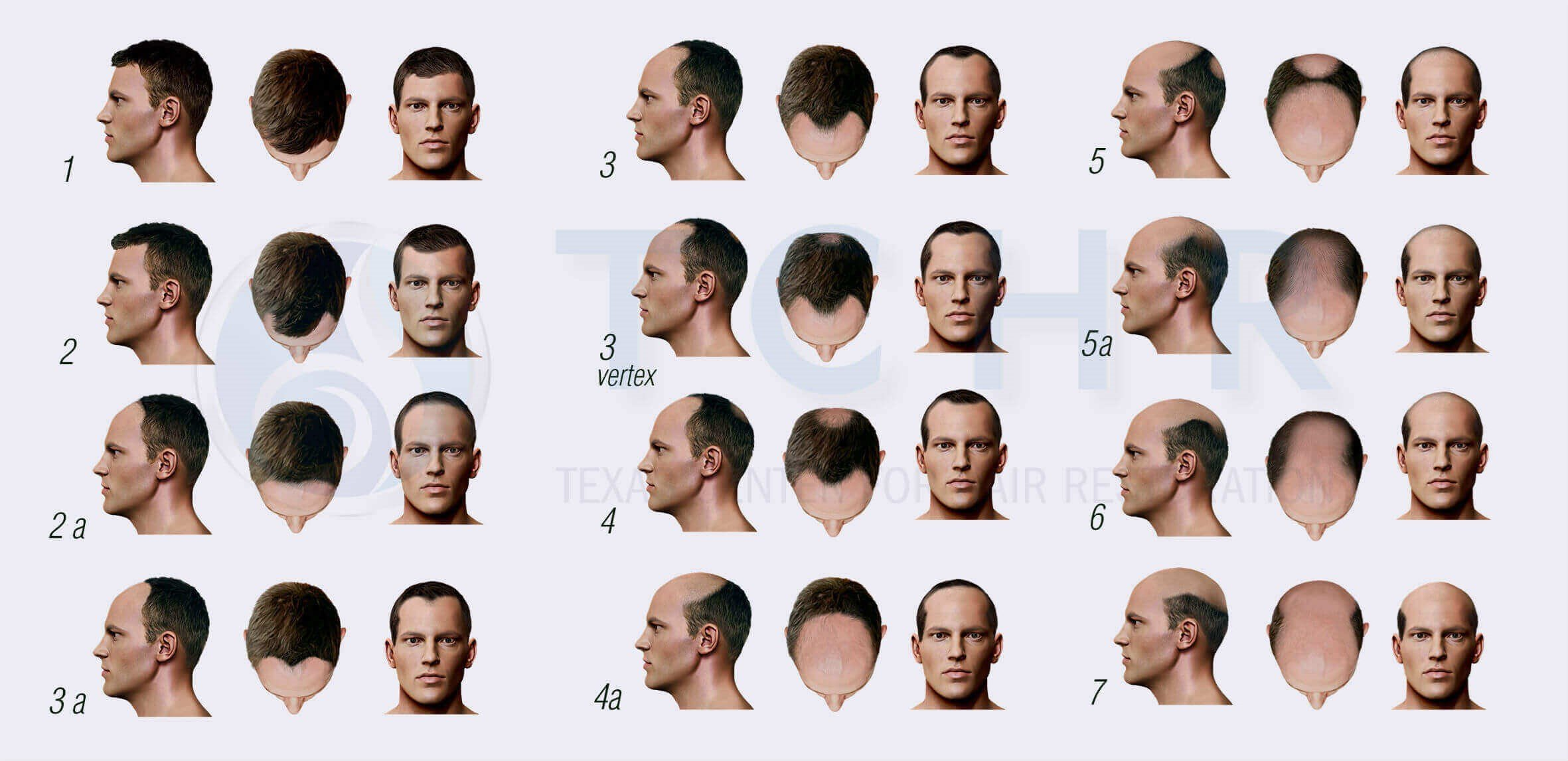 Male Pattern Baldness Stages Magnificent Inspiration