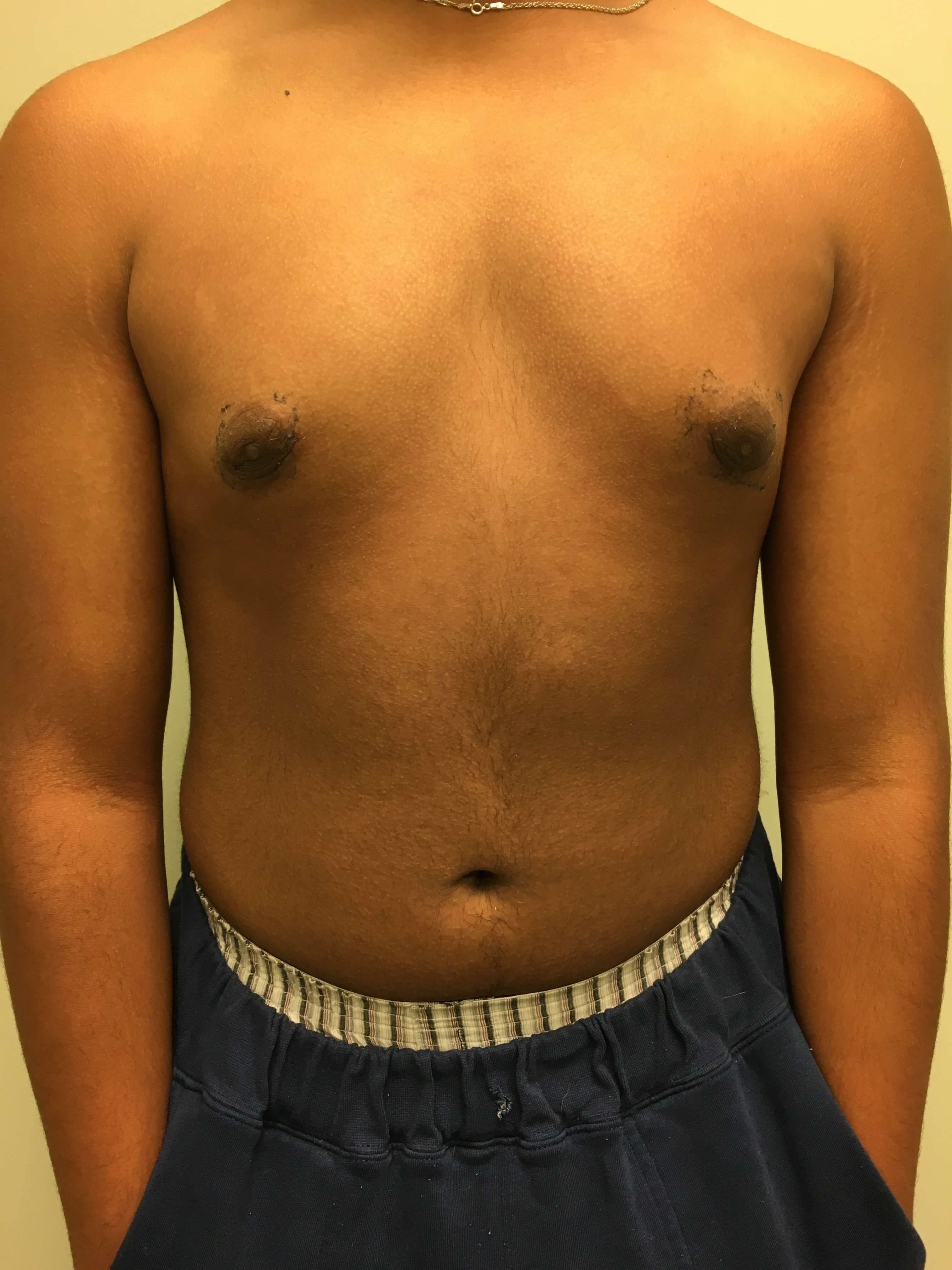 Gynecomastia excision After