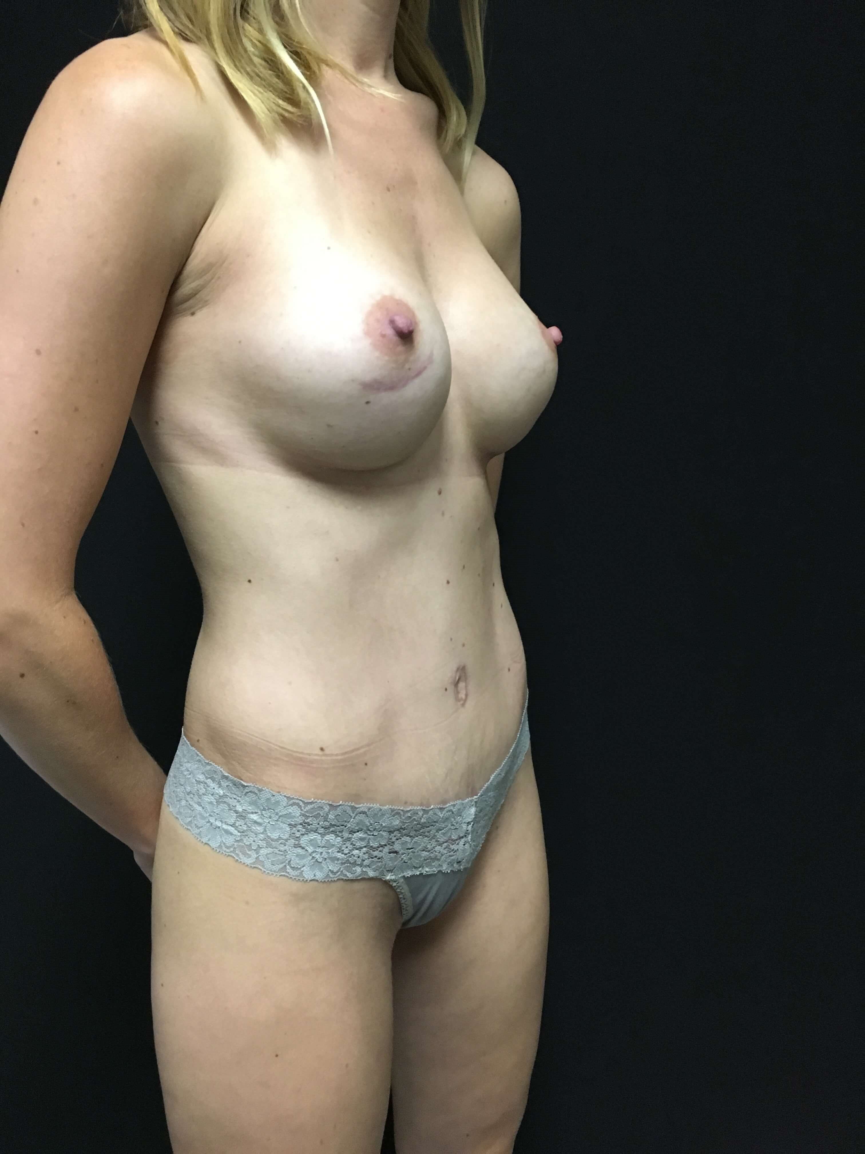 tummy tuck - mommy makeover After