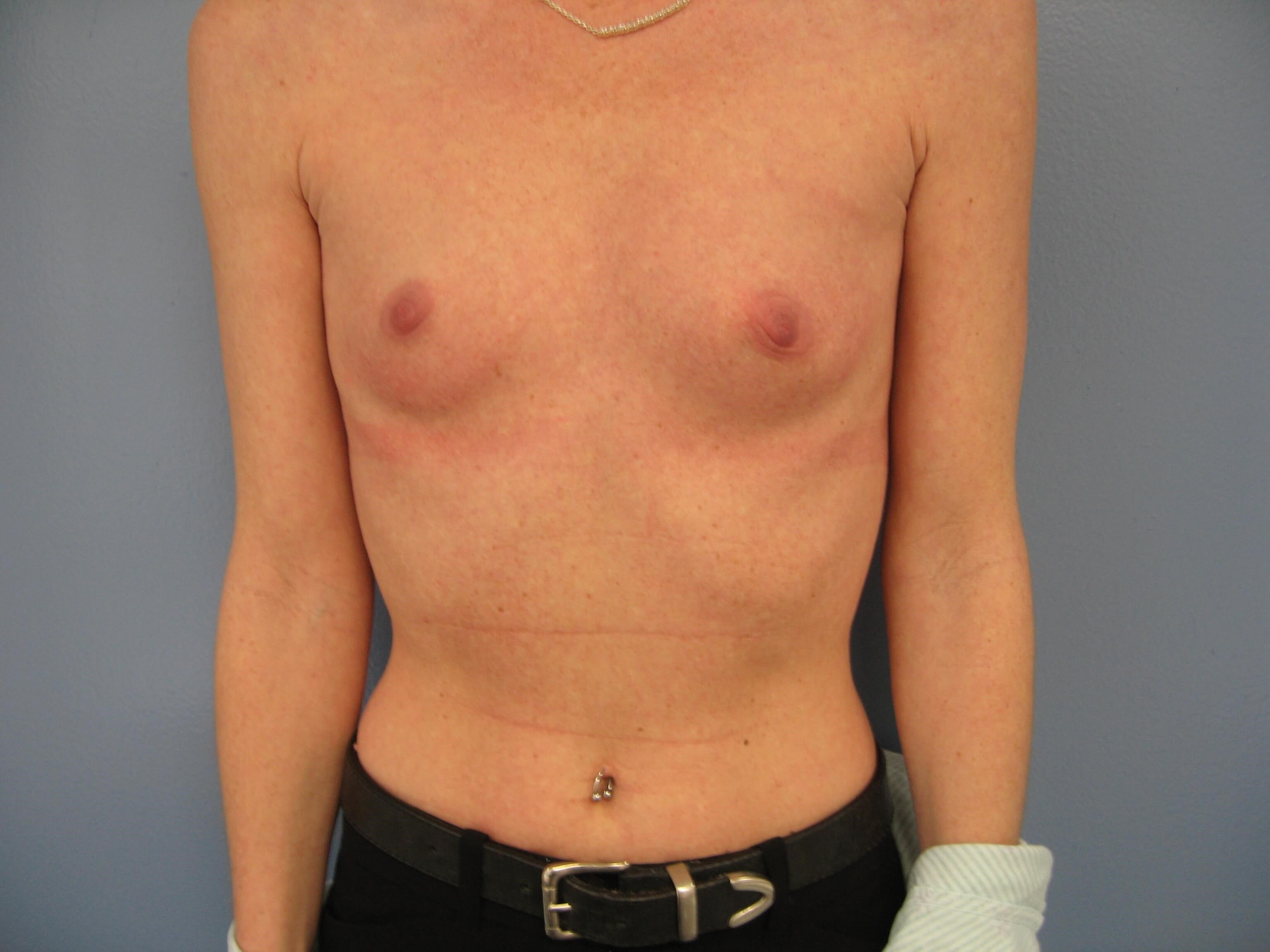 Primary breast augmentation Before