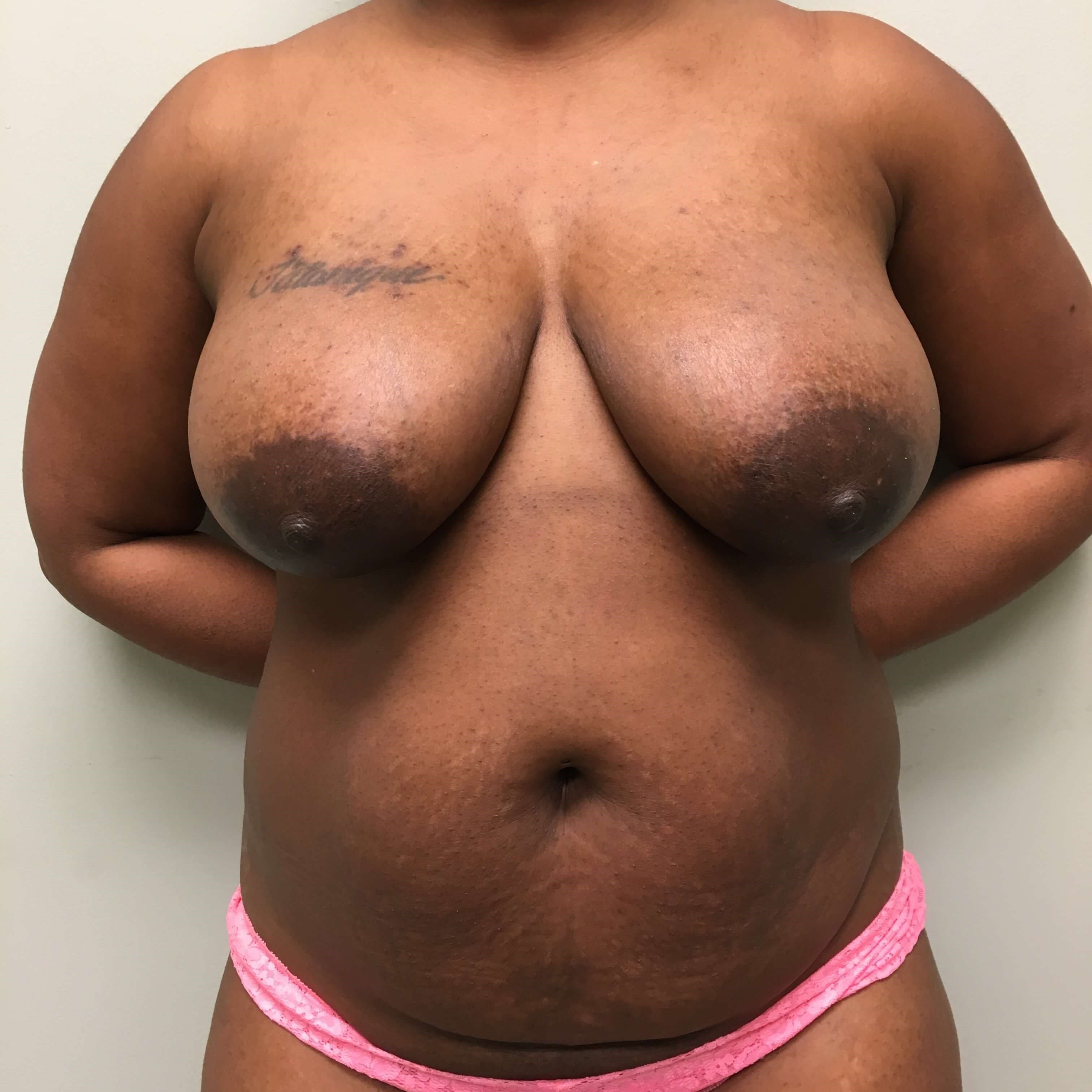 Mommy makeover - breast lift Before