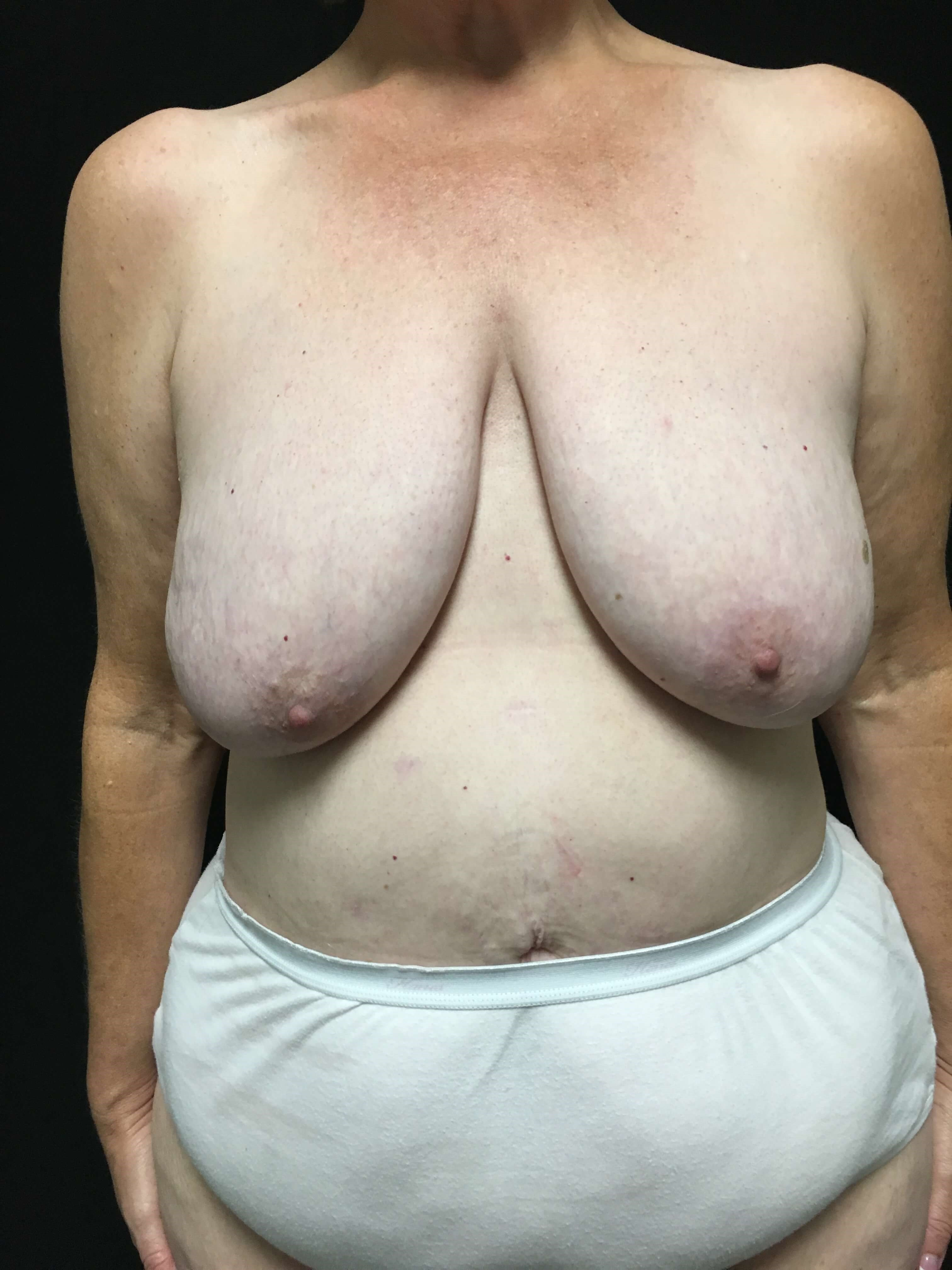 breast reduction/lift Before