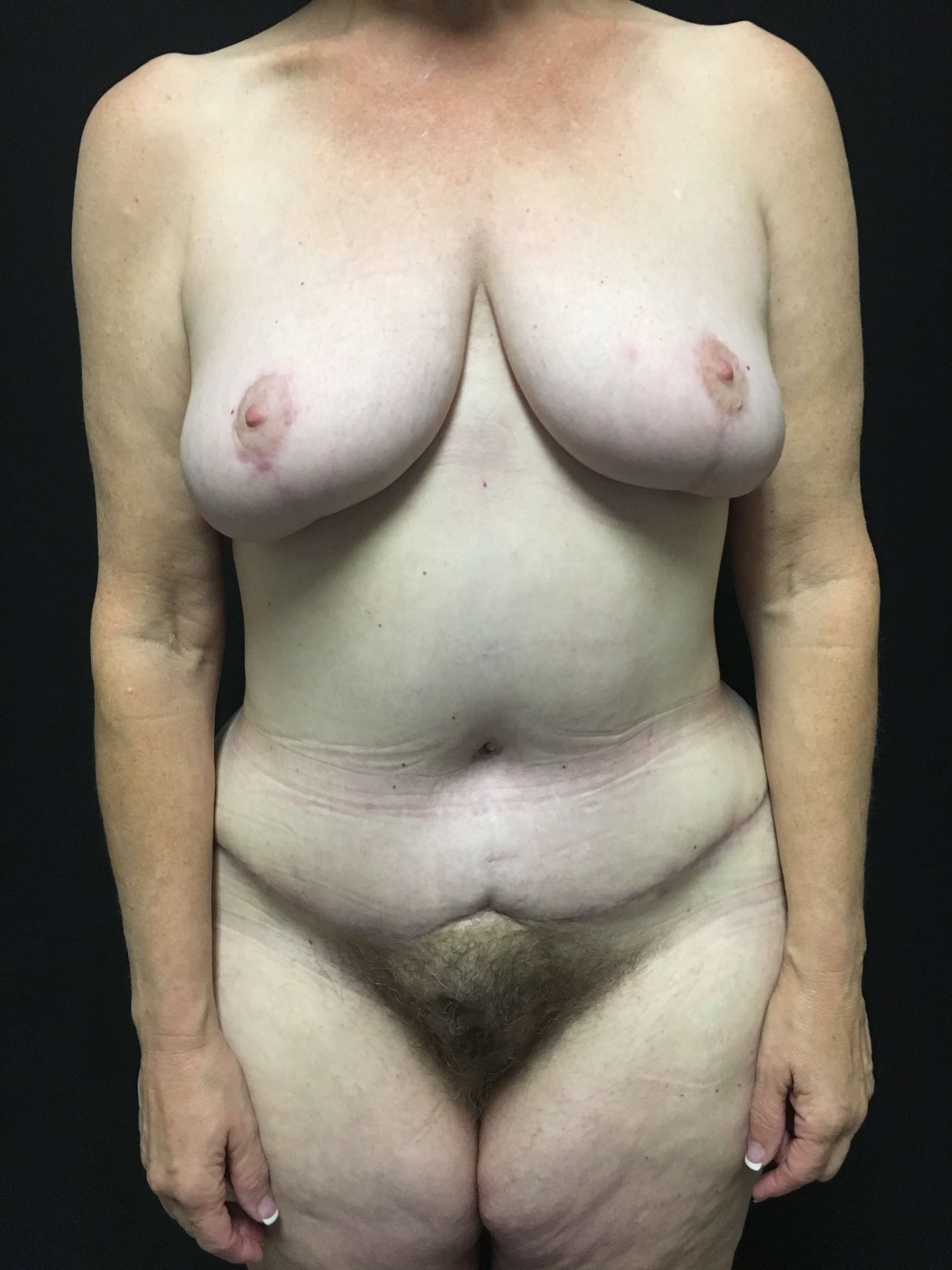 breast reduction/lift After