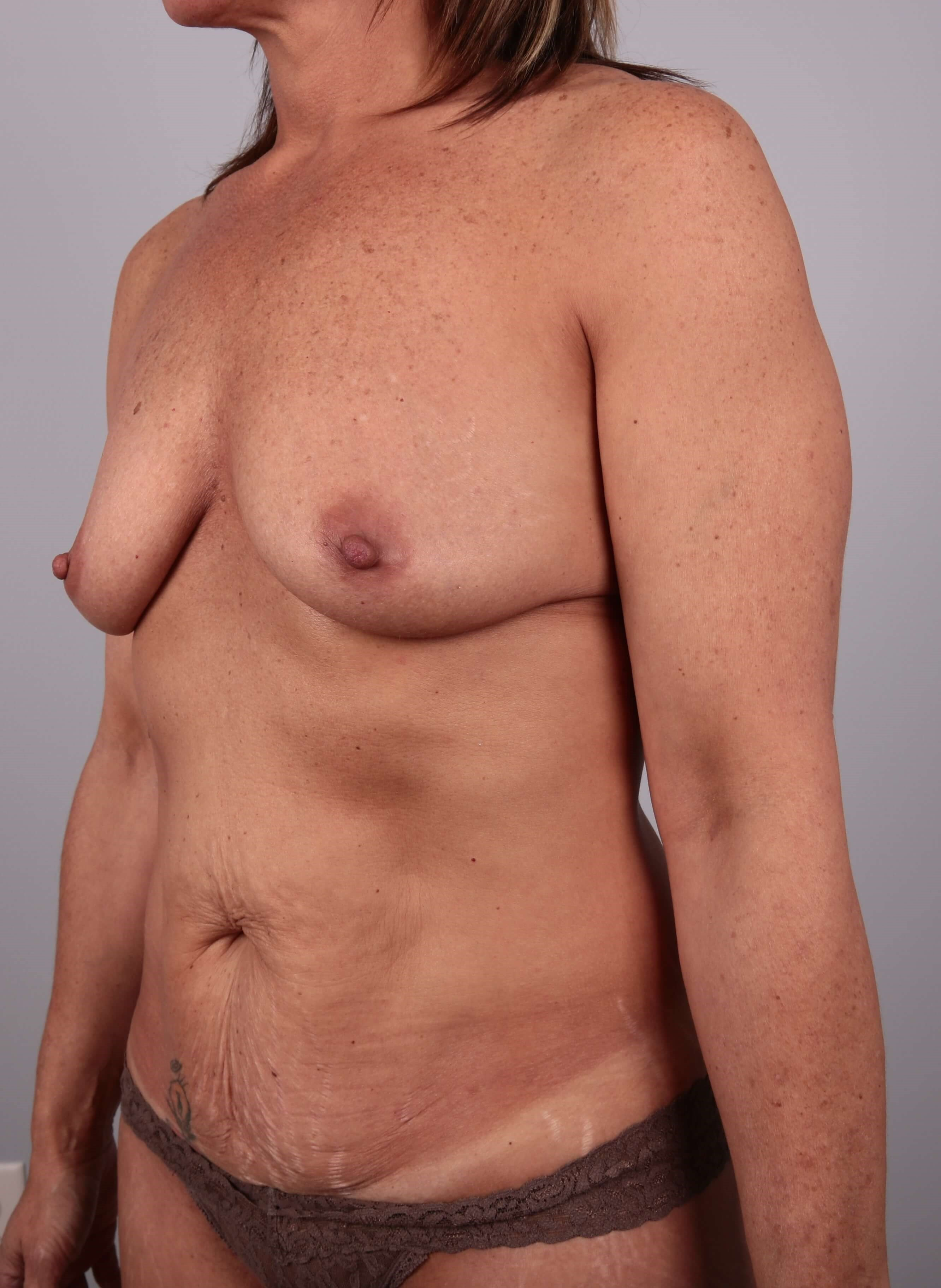 tummy tuck - mommy makeover Before