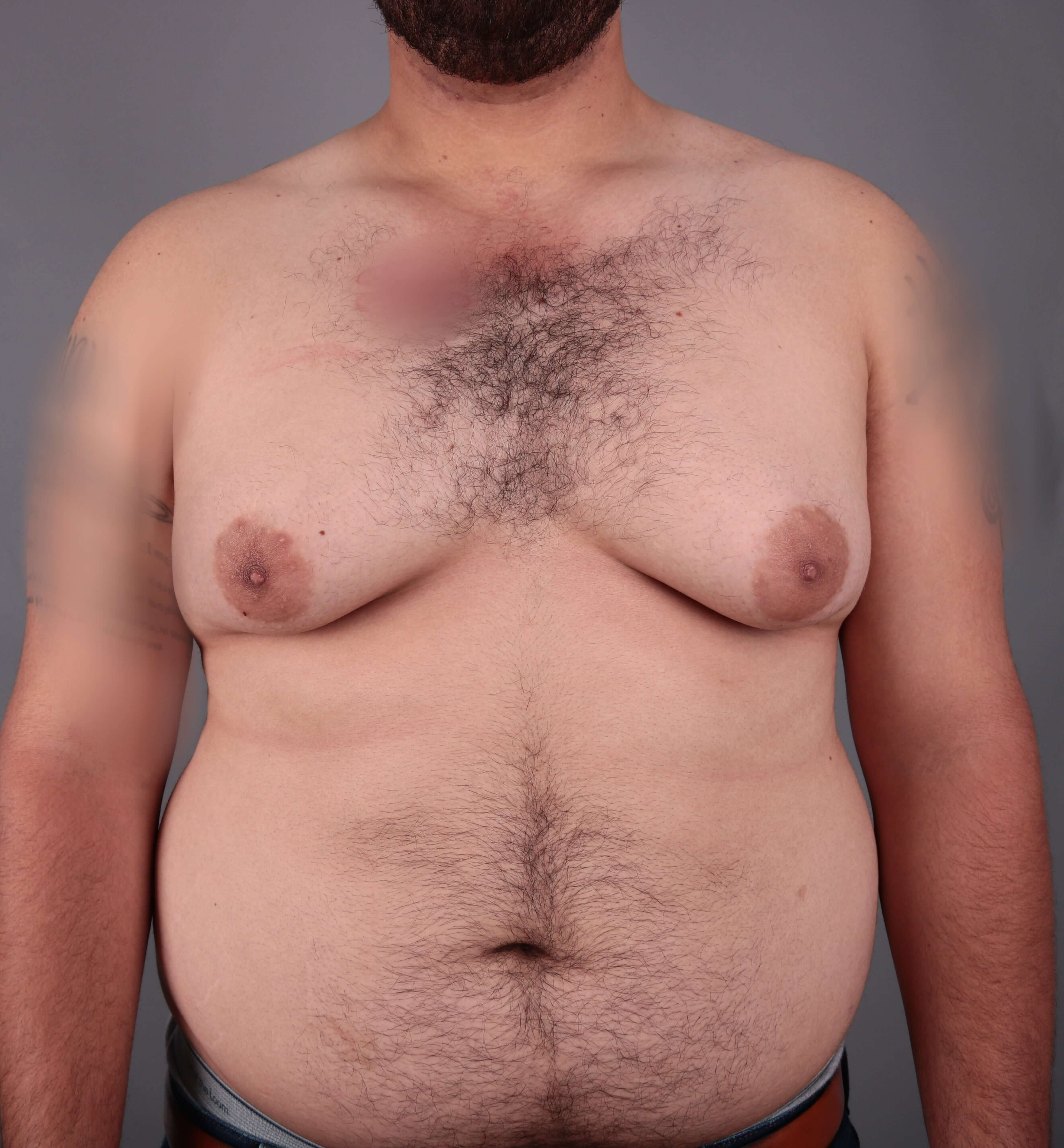 gynecomastia excision Before