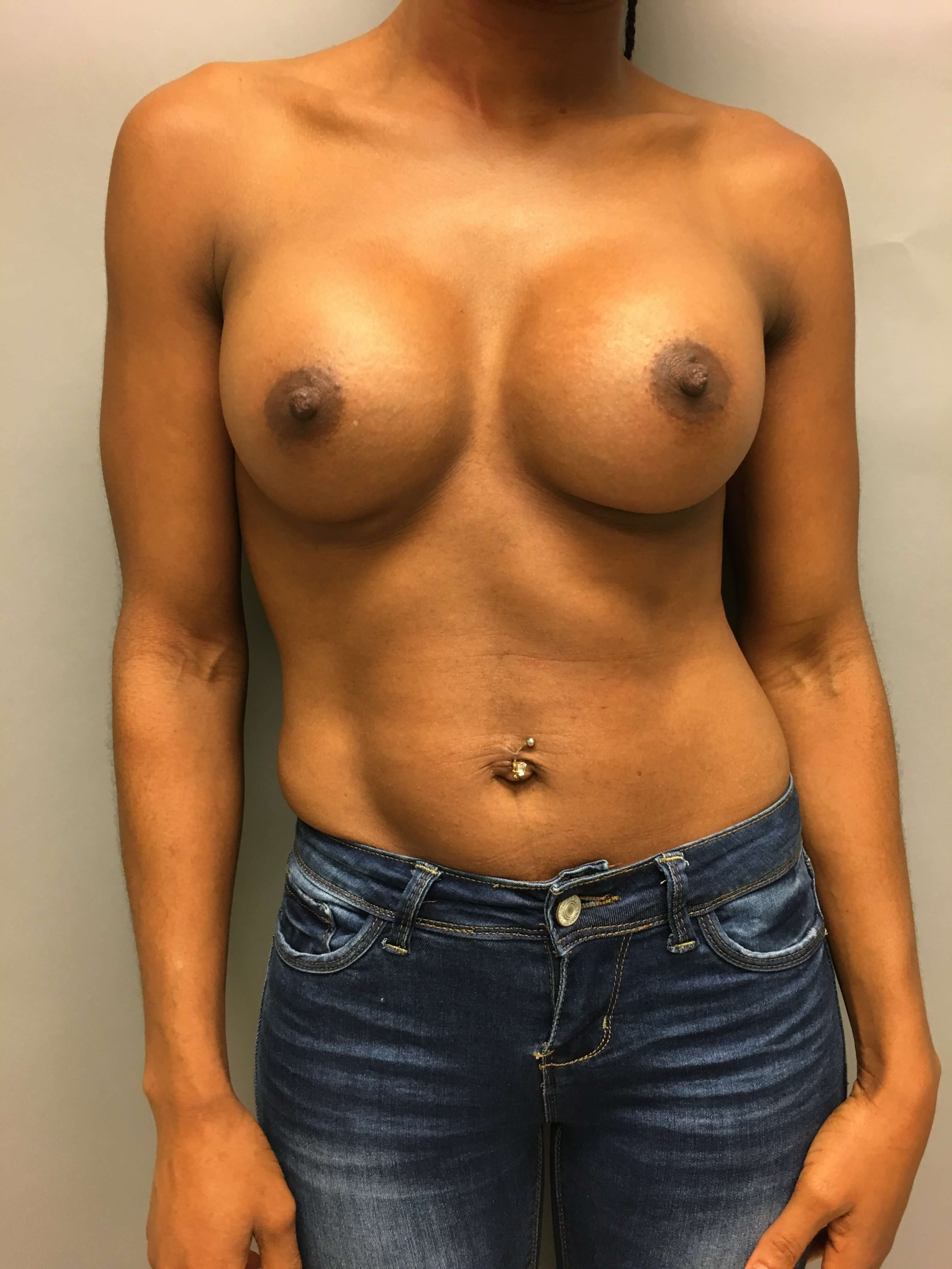 Primary breast augmentation After