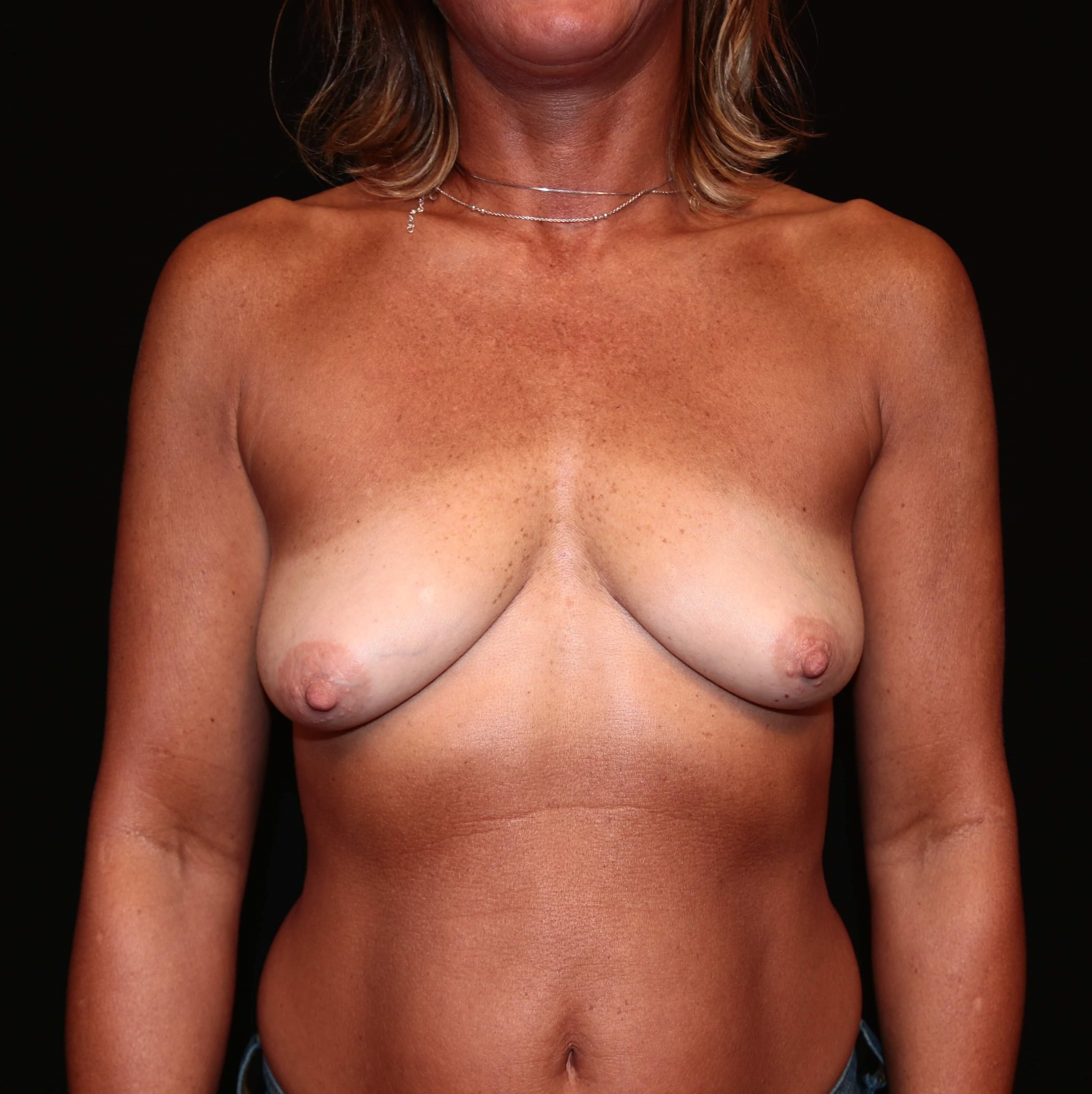 Primary breast augmentaion Before