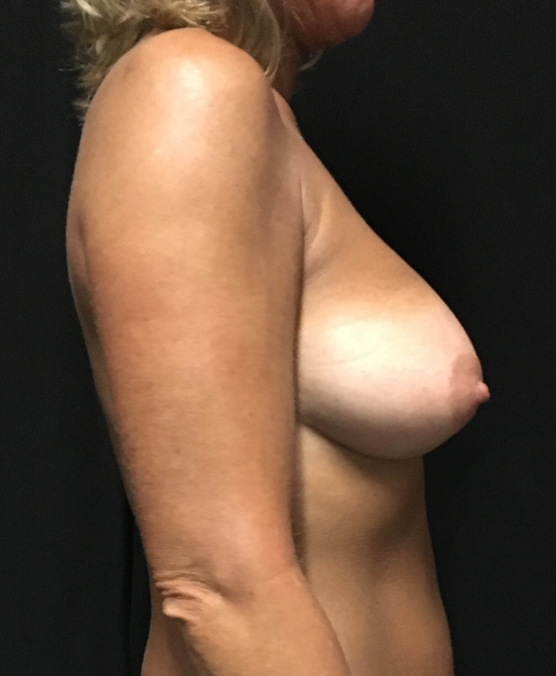 Primary breast augmentaion After