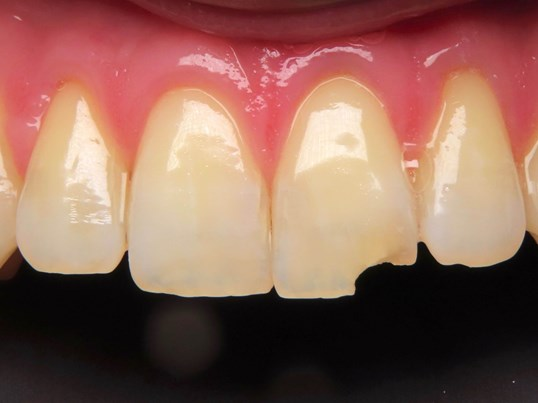 Single tooth Porcelain crown Before