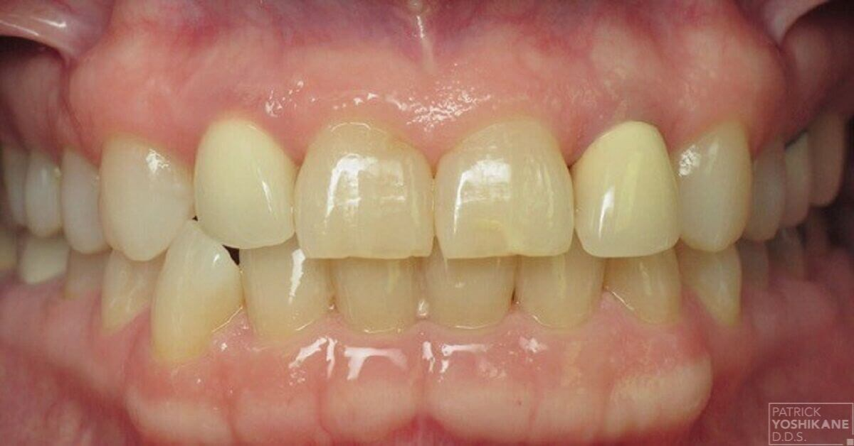 Smile makeover in Orange, CA Before
