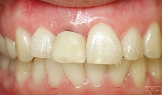 Front tooth implant crown Before