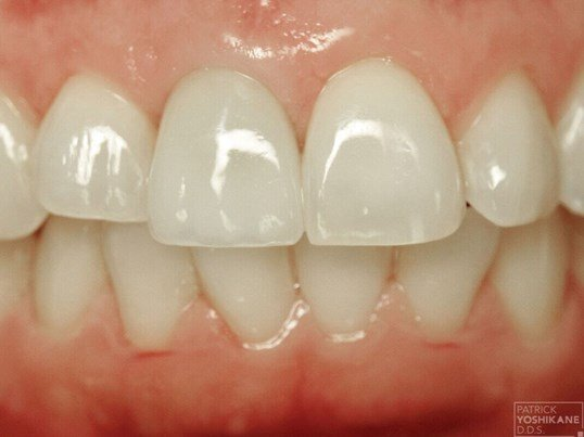 Front tooth implant crown After